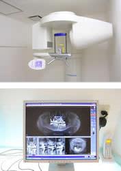 歯科用CTスキャン