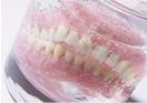 はっきりいって「入れ歯」はニセモノなのです